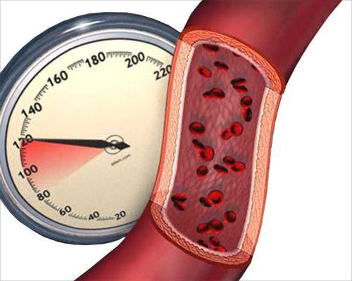 Гипертоническая болезнь как первопричина появления осложнений со стороны сердца