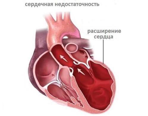 Сердечная недостаточность, классификация